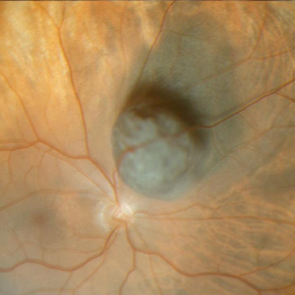 Tumorerkrankungen des Auges