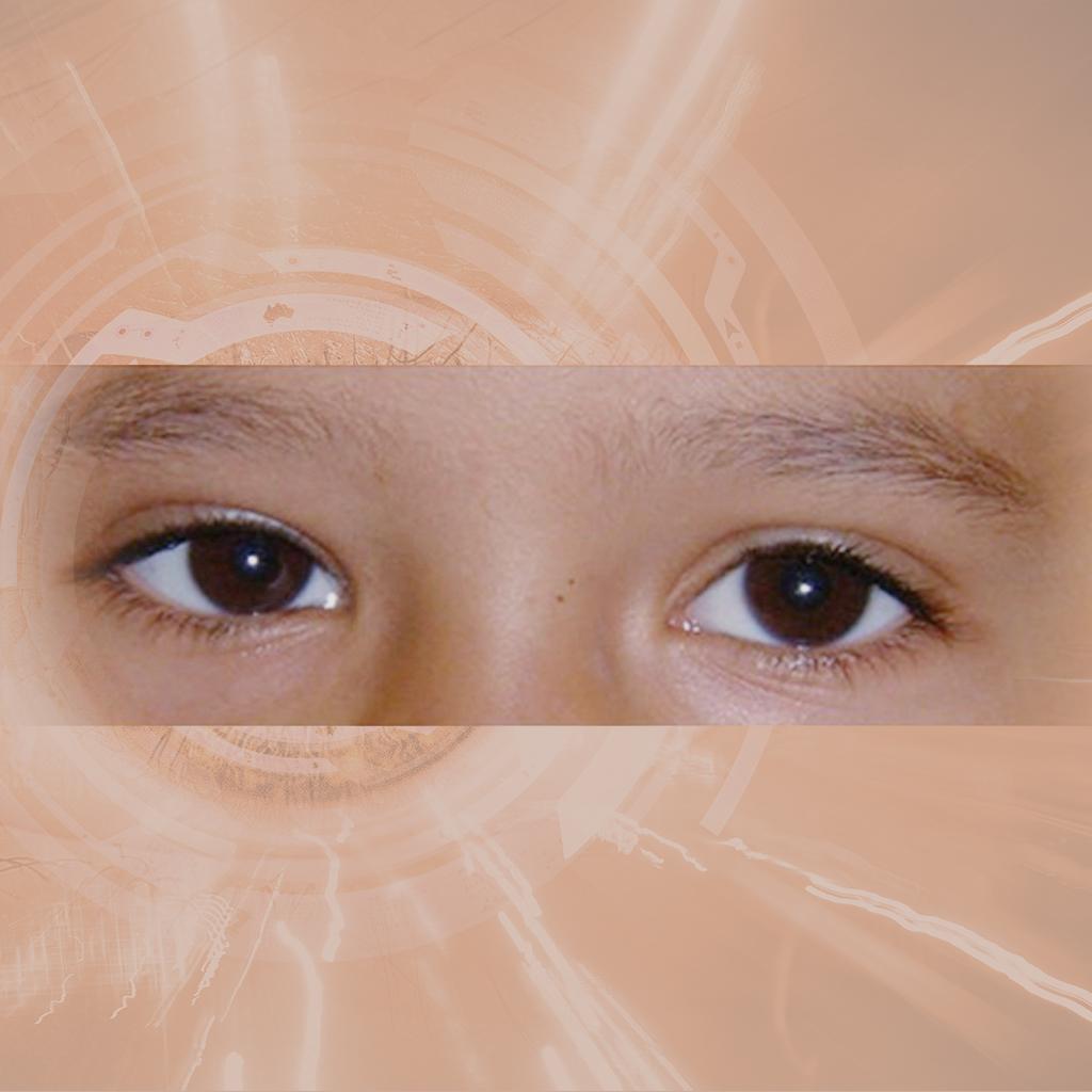 Schielen und Augenmuskellähmungen